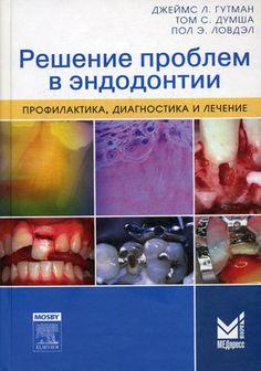 Решение проблем в эндодонтии