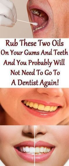You probably will not need to go to dentist again, rub these two oils on your gums and teeth! Essential oils are widely used in aromatherapy and various traditional medicinal systems. They are pack… Teeth Health, Oral Health, Dental Health, Dental Care, Healthy Teeth, Hair Health, Healthy Life, Dental Hygiene, Gum Health