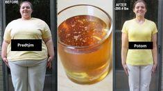 Nie je žiadnym tajomstvom, že škorica má mnoho užitočných vlastností. Toto korenie bráni rozvoju kardiovaskulárnych chorôb, pretože pomáha znižovať hladinu cholesterolu v krvi a znižuje [...] Weight Loss Drinks, Weight Loss Meal Plan, Weight Loss Smoothies, Lose Arm Fat Fast, How To Lose Weight Fast, Cinnamon Health Benefits, Cinnamon And Honey Benefits, Honey Drink, Lose Weight In A Week