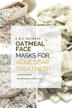 Oatmeal is a natural ingredient found in a ton of natural remedies. Here is a list of 3 oatmeal face mask for acne and scar treatment.