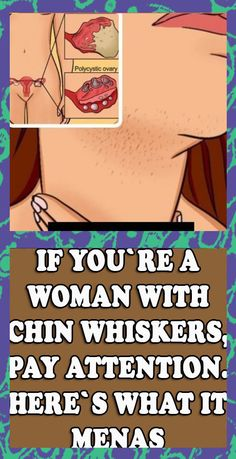 #chin #woman #whisker #pay #means #health #beauty #skin #weightloss #healthy #lifestyle