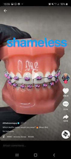 Dental Braces, Teeth Braces, Braces Transformation, Cute Braces Colors, Braces Tips, Getting Braces, Girl Film, Brace Face, Volleyball Workouts
