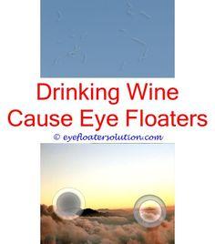 Best 25 Eye Floaters Solution Ideas On Pinterest