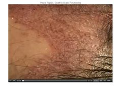 Graft Placement: Graft to Scalp Positioning 1 #HairTransplantVideo #hairtx #drsamlam #hairdisorders #GraftPlacement