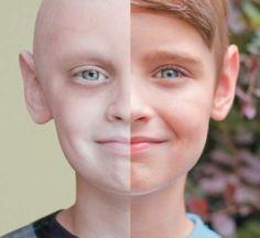 La campagne choc d'un centre de lutte contre le cancer - 7SUR7.be \Cliquez sur la photo pour l'article