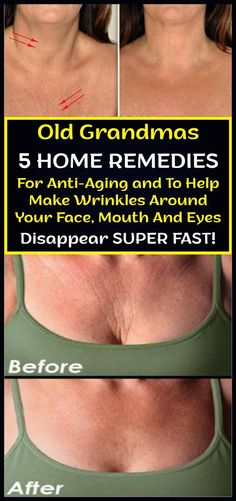 Old Grandmas 5 Home Remedies For Anti-Aging and To Help Make Wrinkles Around Your Face, Mouth And Eyes Disappear Super Fast! - Type and Seek