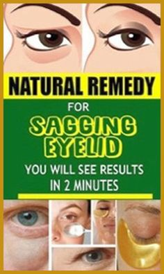 Natural Remedy for Sagging Eyelids You Will See Results In 2 Minutes! - Organic Remedies Tips Holistic Remedies, Natural Health Remedies, Holistic Healing, Natural Healing, Healing Herbs, Medicine Book, Herbal Medicine, Health Guru, Health And Nutrition