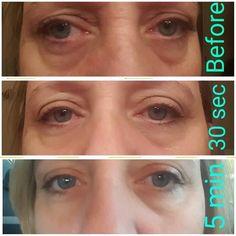 Immediate results using Nerium Eye Serum!