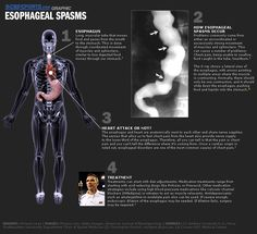 how to stop esophageal spasms fast
