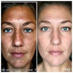 WOW!!!  This is Ashley and her 45 day results with Rodan + Fields REVERSE and AMP MD roller!!    Message me to get started on your journey to great skin!!
