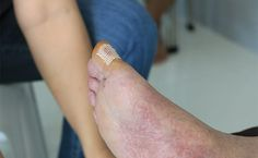 Foot pain could be a sign of corns and calluses. Find out what causes the thick skin on the foot and how to prevent a corn and callus, with home remedies. Healthy Tongue, Healthy Skin, Baby Oil Uses, Foot Remedies, Survival Essentials, Baking Soda And Lemon, Thick Skin, Native Beadwork, Natural Health Remedies