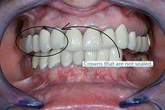 Eminent Dental Crown Ceramics #teethwhiteningpen #DentalCrownPorcelain Dental Surgery, Dental Implants, Tooth Crown, Crown For Kids, Front Teeth, Dental Cosmetics, Dental Bridge, Dental Crowns, After Life