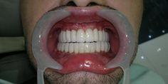 denti fissi milano