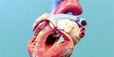 Wetenschappers hebben een methode ontwikkeld om ernstige hartschade deels te herstellen. Door stamcellen te injecteren in het hart, is een groep zwarehartpatiënten nu weer fit en gezond. De baanbr…