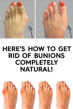 Here's how to get rid of bunions completely natural!