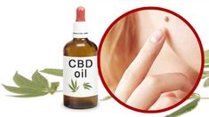 CBDSafe is safest place to buy CBD Oil Online. We are the online CBD store offering hemp oil directly to your door. Providing you with the best CBD oil products quickly and safely. Cannabis Plant, Cannabis Oil, Calming Oils, Skin Moles, Cbd Hemp Oil, Doterra Oils, Active Ingredient, Natural Remedies, Health Tips