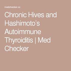 Chronic Hives and Hashimoto's Autoimmune Thyroiditis | Med Checker