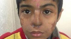 #Garoto de 12 anos recebe nariz novo criado em sua própria testa - BBC Brasil: BBC Brasil Garoto de 12 anos recebe nariz novo criado em sua…