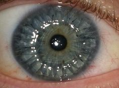 Sometimes science is an art. This is an image of a cornea transplant....I remember having my sparkles in my eye:-)