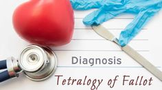Tetralogy of Fallot is a rare condition caused by a combination of four heart defects that are present at birth. Heart Conditions, Cardiology, Heart Health, Heart Disease, Announcement, Birth, Conditioner, Medical, Cardiovascular Disease