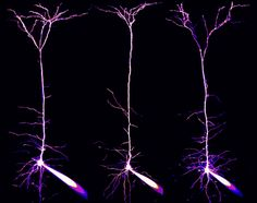 Alexandre William Moreau, Institute of Neurology, University College London, England  Subject: Pyramidal neurons and their dendrites visuali...