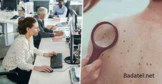 Melanóm je choroba kancelárskych pracovníkov