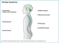 Multiple Sklerose ist eine Krankheit mit vielen Gesichtern. Es gibt kein typisches Symptombild. Die Symptome sind erstens von der Lage und zweitens vom Ausmass der Schädigungen in Gehirn und Rückenmark abhängig. Anfängliche Symptome werden oft übersehen oder einem anderen Krankheitsbild zugeschrieben. Oft dauert es Jahre, bis Betroffene beim MS-Spezialisten sind und die Diagnose feststeht.