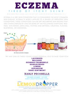 Super Young Living Oils for Eczema