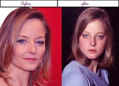 after before Plastic surgery photos of Jodie Foster she appears to be remarkable in recent times - Being an actress especially in Hollywood is one toll of a stress magnet. They don't get to have privacy' the smelliest of the smelly secrets they had in the past; spreads like a virus and the worst part' you have to answer to anything they throw at you or else you're a certified gui... #JodieFosterAfterBeforeSurgery, #JodieFosterAfterPlasticSurgery, #JodieFosterB