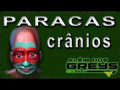 Os Misteriosos Crânios de Paracas podem ser crânios Híbridos meio humanos, meio alienígenas. | Alem dos greys