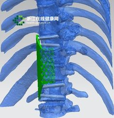 3ders.org - Two 3D printed vertebrae successfully implanted into the spine of 21-year-old tumor sufferer | 3D Printer News & 3D Printing News