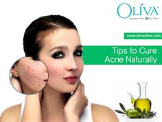 Best 5 Tips to Get Rid of Acne Naturally at Home  http://olivaclinic.blogspot.in/2015/11/top-5-tips-to-remove-get-rid-of-acne.html