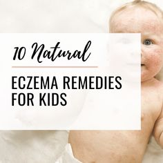 6 Reasons Why Low Stomach Acid Causes Eczema and Allergies - Valery Reut Skin Care Treatments, Natural Treatments, Toddler Eczema, Eczema Remedies, Natural Remedies, Celery Juice Benefits, Essential Oils For Eczema, Easential Oils