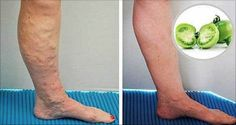 If there isn't a proper blood circulation, the veins and arteries of our legs feel like burning and start to stand out. Undoubtedly, it is a very common problem among people nowadays, but today we're going to present you something very effective! THE BEST REMEDIES AGAINST VARICOSE VEINS THAT DERMATOLOGISTS RECOMMEND APPLE CIDER VINEGAR For …