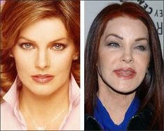 Priscilla, a case of to much Botox gone wrong.think about making changes :(Poor Priscilla, a case of to much Botox gone wrong.think about making changes :( Botched Plastic Surgery, Bad Plastic Surgeries, Plastic Surgery Gone Wrong, Celebrity Plastic Surgery, Linda Thompson, Celebrities Before And After, Celebrities Then And Now, Priscilla Presley Plastic Surgery, Elvis Presley