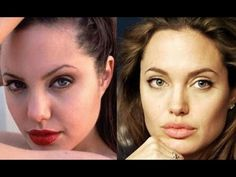 Celebrity Plastic Surgery famous celebrities transformed celebrities before and after
