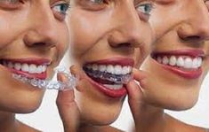 URBN Dental easily offers highly recommended treatment for Invisalign Houston. With this cutting edge technology, we aim to revolutionize the appearance and straightening of teeth. Braces Cost, Las Vegas, Teeth Braces, Teeth Dentist, Dentist Near Me, Teeth Implants, Dental Bridge, Dental Crowns, After Life