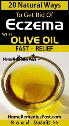 20 Natural Remedies To Use Olive Oil For Eczema Home Remedies For Eczema, Oils For Eczema, Natural Remedies For Allergies, Allergy Remedies, Natural Acne Remedies, Eczema Scars, Eczema On Hands, Get Rid Of Eczema, Olives