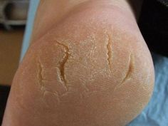Eve's Special: The Most effective Home Remedies For Cracked Heels Baba Vanga, Dry Cracked Feet, Take Care Of Me, Home Remedies, Pedicure, Natural Health, Beauty Hacks, Blog, Going Barefoot