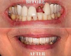 Fractured teeth? Don't worry we offer Dental Crowns at an affordable price at URBN Dental. Cosmetic dentistry is a method of professional oral care that focuses on improving the appearance of your mouth, teeth and smile. Our motto is to help the patient in every possible way so that they dont't have to live in pain.Get an appointment now. Affordable Dental Implants, Dental Implant Surgery, Dentist Near Me, Dental Crowns, Family Dentistry, Cosmetic Dentistry, Facial, Cosmetics, Don't Worry