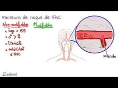 Nonischemic dilated cardiomyopathy