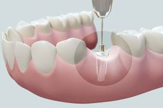Incandescent Tooth Implant Before And After Dental Care Dental Implant Procedure, Teeth Implants, Dental Surgery, Dental Implants, Dental Hygienist, Tooth Extraction Care, Emergency Dentist, Dental Cosmetics, Dental Bridge