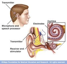 Infographic: How a Cochlear implant works.