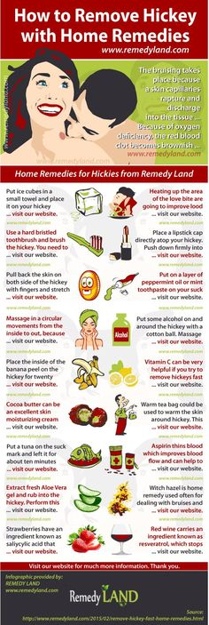 Try following home remedies to remove hickies or love bites fast. Hickeys or suck marks are not harmful!!! #hickey #hickeys #remedies