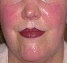 1000 images about rosacea on pinterest clean makeup. Black Bedroom Furniture Sets. Home Design Ideas