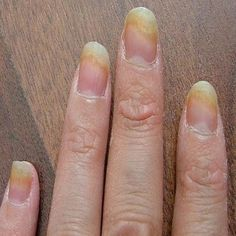 Top 5 Herbal Remedies For Fingernail Fungus