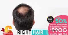 Oliva Clinic's Bangalore Offer Flat 50% Off on PRP Hair Loss Treatment https://www.olivaclinic.com/blog/prp-hair-loss-treatment-offer-in-bangalore/