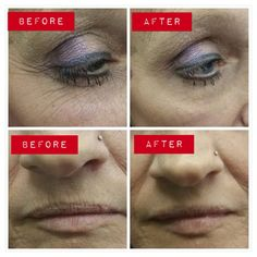 before after photos crowsfeet, lip wrinkles More areas where IA can be applied. Amazing results http://www.agelesstrish.jeunesseglobal.com #nomorebags #jeunesse #bizopp