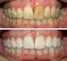 No harsh chemicals, safe for everyday use, no sugars. Cheaper than strips/trays! Ya just brush your teeth 🙌🌿 Ap 24 Whitening Toothpaste, Whitening Fluoride Toothpaste, Best Teeth Whitening, Nu Skin, Beauty Tips For Fairness, Beauty Tips For Face, Get Whiter Teeth, Buttery Soft Leggings, Teeth Care