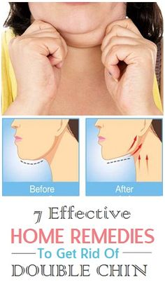 Remedies To Get Rid of Double Chin